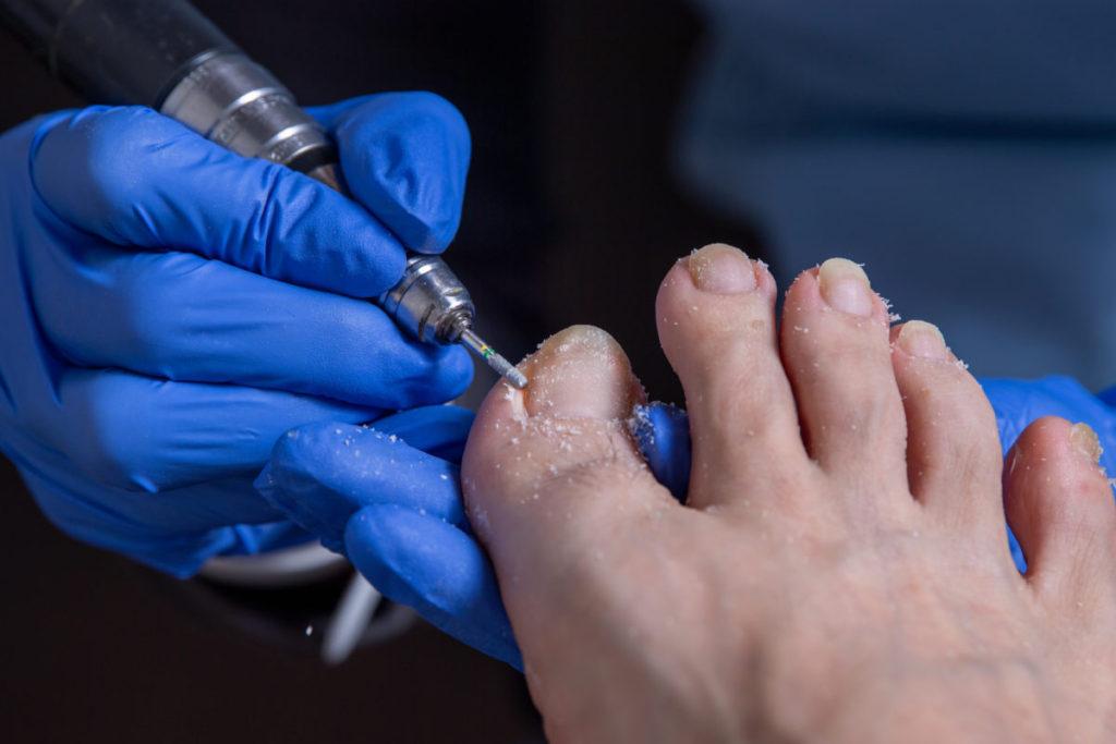 足の爪切りとケア 健爪師 大嶋美穂 熊本で爪のトラブルを解決しています